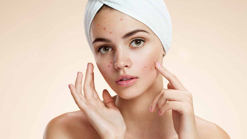 cbd for skin acne